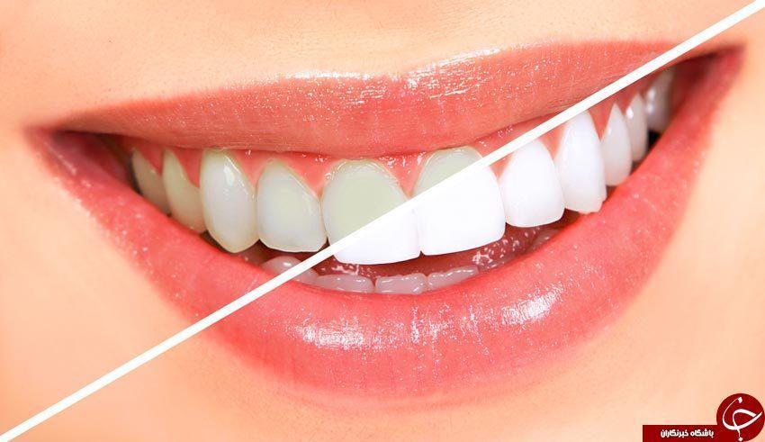 سفید کردن دندان ها بدون احتیاج به دندانپزشک، با 7 فرمول طبیعی دندان هایتان مثل مروارید می درخشد